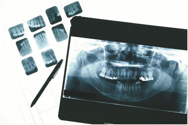 снимки зубов
